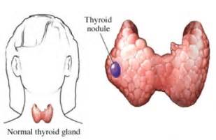 low density nodule in thyroid picture 1