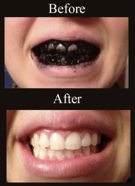 best way to whiten your teeth picture 2