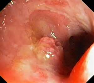 ulcerative colitis in the sigmoid colon picture 14