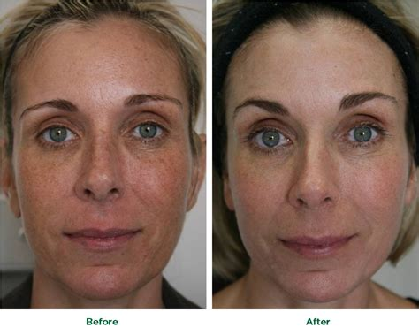 danger of fraxel skin treatment picture 13