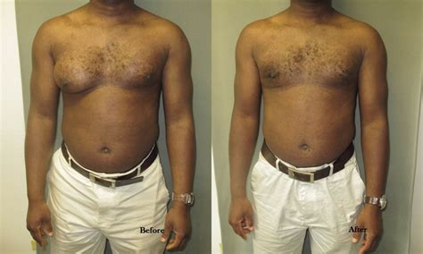 can motilium cause breast growth in men picture 4