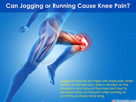 can hydroxycut cause joint pain picture 6