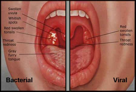 viral infection of throat picture 2