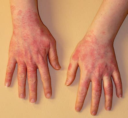 Physical urticaria picture 18