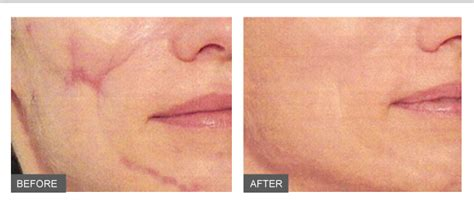 fix skin keloid removal review picture 14