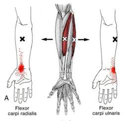 flexor carpi radilis stretches what muscle picture 14