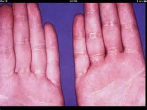 hypercholesterolemia picture 9