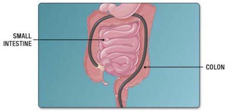 colon cancer out come picture 5