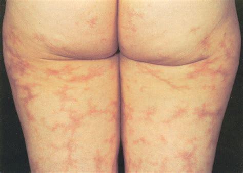 skin rash livedo picture 10