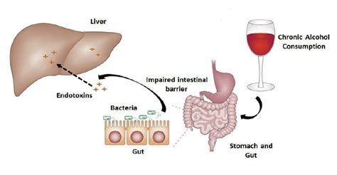 full cirrhosis of the liver picture 3