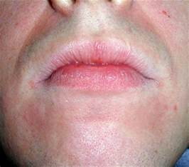 redness in face chapped lips fire around lips picture 11
