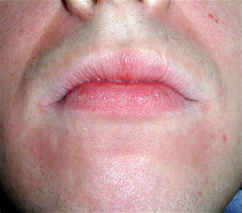 redness in face chapped lips fire around lips picture 8
