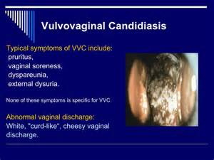 white curds candida picture 2