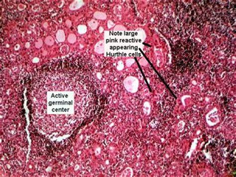 fine needle aspiration on thyroid nodule picture 11