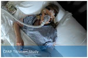 apnea sleep studies picture 10