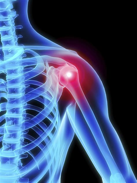 shoulder joint pain picture 7