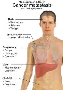 mis-diagnosis of metastatic liver cancer picture 11
