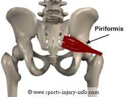 info on pull muscle picture 15