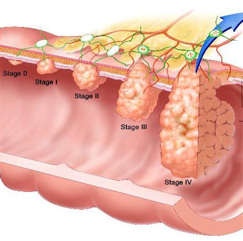 colon carcinoma picture 3
