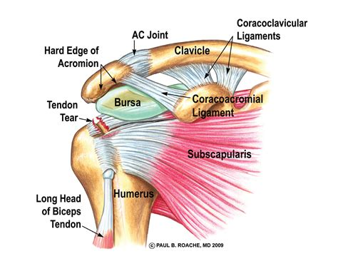 ac joint arthritis picture 2
