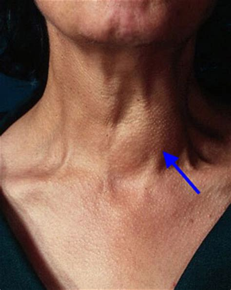 what are the symptoms of a swollen parathyroid picture 4