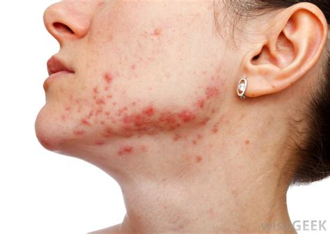 endocrine acne disorders picture 3