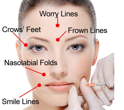 formula aesthetic injection for best whitening picture 9