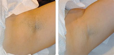 armpit waxing after breast aug picture 1