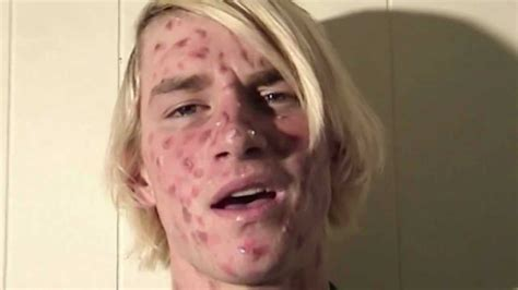 acne only on face picture 6