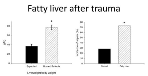 common variable immunodeficiency fatty liver picture 11
