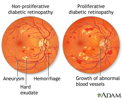 ada diabetic retinopathy picture 6