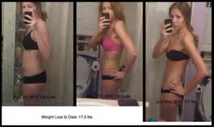the real skinny on weight loss surgery picture 6