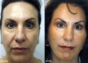Laser surgery for acne picture 7