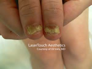 laser treatment for nail fungus in kansas city picture 8
