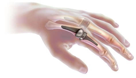 finger joint replacements picture 3