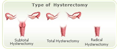 ageing after a hysterectomy picture 15
