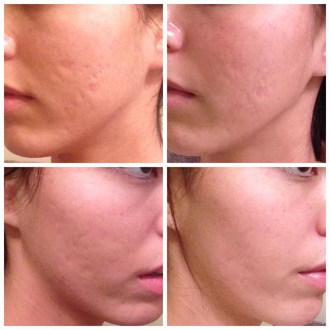 acne female picture 3