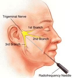tooth pain nerve inflammation picture 7