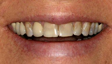 childrens teeth discoloration and veneers picture 8