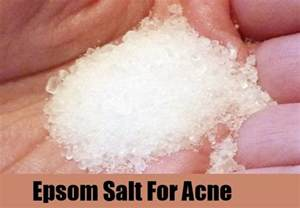 acne spot treatment with epsom salts picture 4