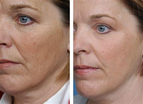 skin resurfacing picture 7