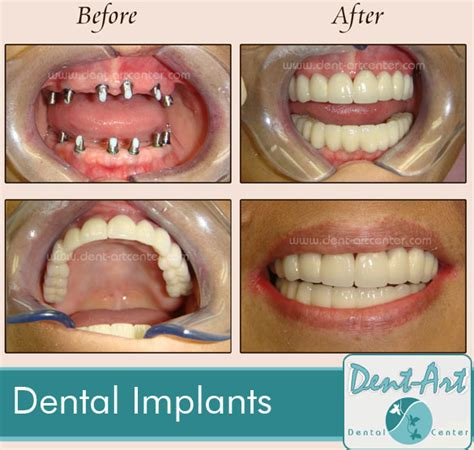after radiation teeth implants picture 1