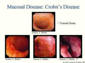 human growth hormone ulcerative colitis picture 6