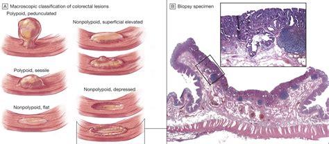 polyps in colon picture 6