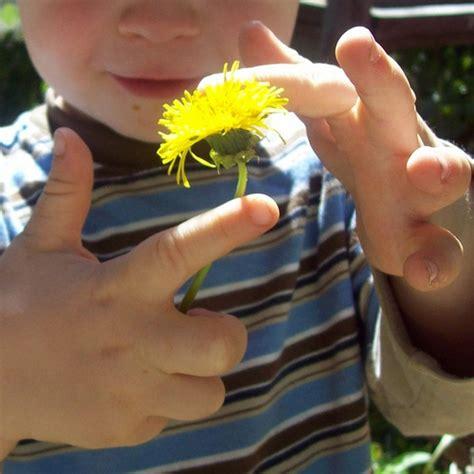 dandelion for liver fat picture 1