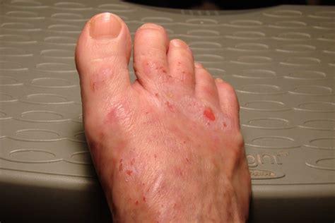 magellan's skin disease picture 2