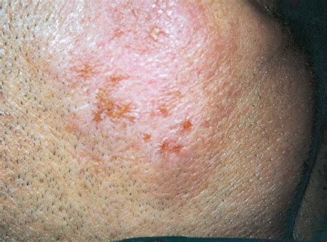 images of herpes lesions picture 3