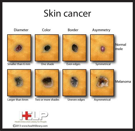 cancer skin cream picture 18