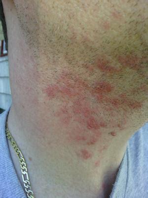 skin rash around neck picture 3