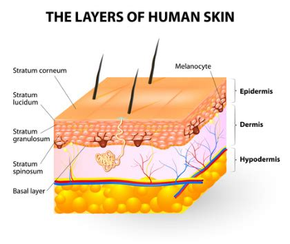 cause of dry skin picture 7